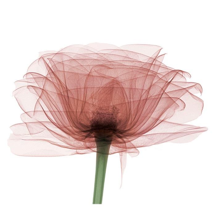 bryan-whitney-x-ray-rose